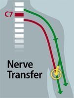 Vision schématique du rebranchement des nerfs dans le bras.