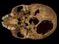Les archéologues ont relevé une importante blessure à la base du crâne.