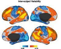 La connectivité est la plus variable dans les zones cérébrales en rouge, orange et jaune. Crédit photo: Neuron