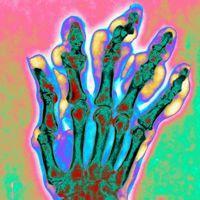 Les crises de goutte peuvent également toucher la main.