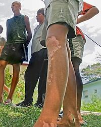 Un enfant atteint de vitiligo.