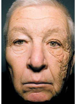 À droite, le visage de cet homme de 69 ans a vieilli de manière accélérée sous les effets des rayons UVA , exposé à travers la vitre son camion. crédit: The New England Journal of Medicine ©2012