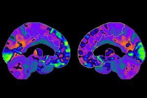 Les zones en vert fluo représentent les parties du cerveau, notamment le gyrus frontal supérieur, où le métabolisme, donc l'activité, est inférieur à la normale.