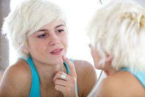 80% des ados sont concernés à des degrés divers par l'acné.