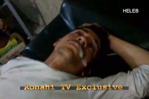 La télévision kurde Ronahi présente un homme qui aurait été «victime d'une attaque chimique» du pouvoir syrien en avril. Les informations sont impossibles à vérifier.