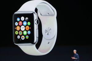 Un des nombreux modèles d'Apple Watch.