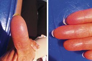 Les empreintes digitales de la patiente se sont effacées. DR/Soto-Perez-de-Celis