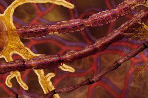 Progression de la neuropathie diabétique. En haut, la fibre nerveuse gainée de myéline est normale, celle du milieu est endommagée et la dernière est détruite.