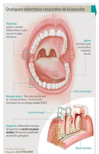 infection aux dents