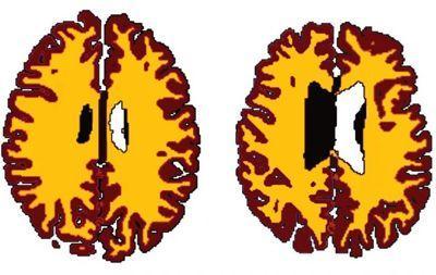 Comparaison de la matière grise (en marron) et de la matière blanche (en jaune) entre une personne de poids normal âgé de 56 ans et une personne obèse de 50 ans.