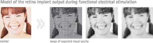 Simulation du type d'image que peut théoriquement percevoir un aveugle portant l'implant rétinien électronique.