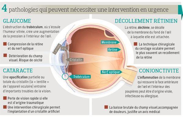 Urgences ophtalmologiques : les signes à connaître