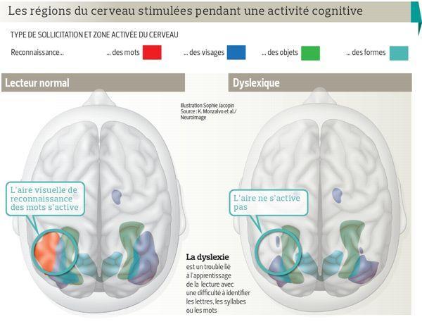 L'imagerie du cerveau dévoile les secrets de la dyslexie