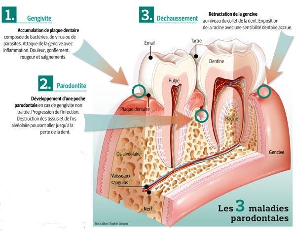 gencive entre deux dents