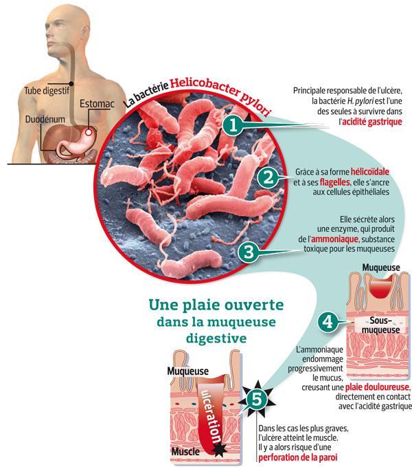 ulcère gastrique symptômes et traitements