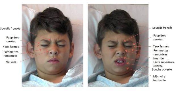 Quelques signes du visage analysés par le logiciel FACS lors des phases de test