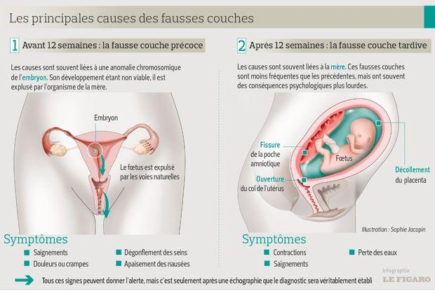 2 fausses couches precoces de suite