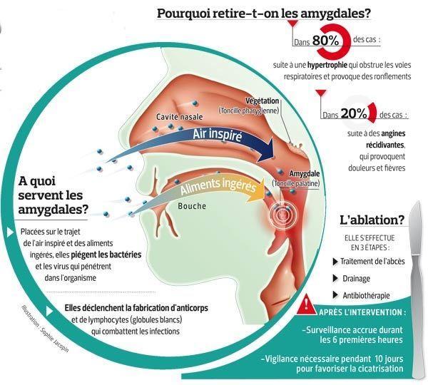 L'ablation des amygdales, une opération mieux ciblée
