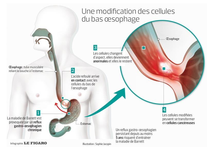 Cancer de l'œsophage : les signes à surveiller
