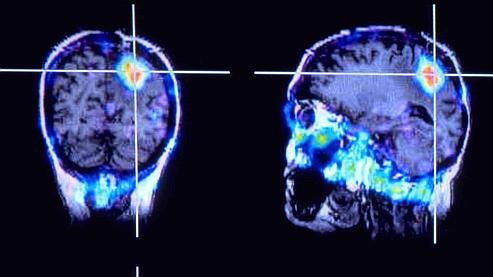 Un cerveau humain présentant une tumeur cancéreuse. Ce type d'intervention évite d'ouvrir la boîte crânienne des patients, qui restent conscients pendant l'opération.