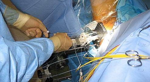 La thérapie vasculaire ciblée a pour particularité de détruire les vaisseaux qui alimentent la tumeur. DR