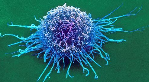 Cellule cancéreuse observée au MEB