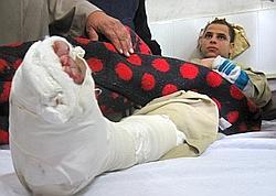 Un jeune copte blessé lors de l'attaque de Nag Hammadi.