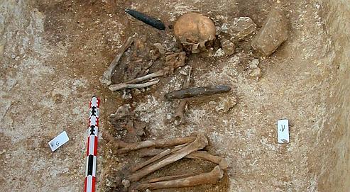 Il y a 7000 ans, on pratiquait déjà des amputations
