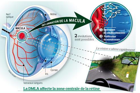 Dégénérescence maculaire : vers de nouveaux traitements