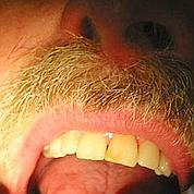 L'anesthésie dentaire en spray