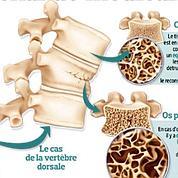 Ostéoporose: un arsenal de médicaments