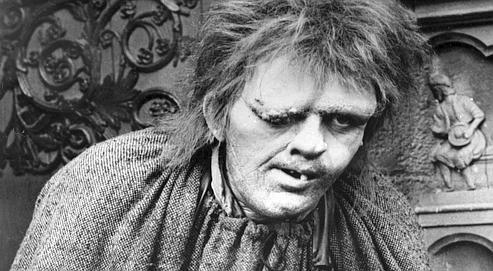 «Ce petit œil gauche obstrué d'un sourcil roux en broussaille tandis que l'œil droit disparaissait entièrement sous une énorme verrue». En 1983, Anthony Hopkins incarne Quasimodo.