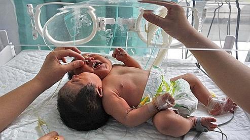La petite fille, ou les jumelles fusionnées, auraient deux têtes, deux oesophages et deux colonnes vertébrales.