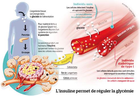 Diabète de type 1: l'espoir des pompesà insuline