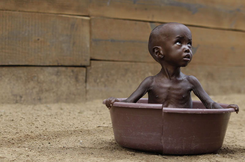<b>S.O.S.</b> Il n'a que 2 ans, il est sauvé, mais son regard trahit encore l'intensité des souffrances qu'il a endurées avant d'arriver enfin dans cet hôpital humanitaire, à la frontière entre le Kenya et la Somalie. Et ce bambin n'est qu'un parmi des centaines de milliers d'autres, tous aussi épuisés et affamés que lui, tous chassés de chez eux par la sécheresse et les combats qui ravagent l'ensemble de la corne de l'Afrique, depuis l'Ouganda jusqu'à la Somalie, en passant par l'Éthiopie, Djibouti et le Kenya. Sur 90 millions d'habitants, cette région en compterait au moins 11,5 millions – dont 2,2 millions d'enfants – qui mourront de faim ou de maladie s'ils ne sont pas rapidement secourus.