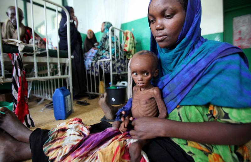 <b>En silence…</b> Le regard perdu dans le vague, cette femme tient dans ses bras son bébé squelettique à l'hôpital Banadir de Mogadiscio en Somalie. Cet hôpital, c'est l'objectif de nombreuses mères venues faire soigner leurs enfants après avoir fui leurs campagnes ravagées par la sécheresse et affectées par la famine. Elles y arrivent le plus souvent épuisées, après plusieurs jours ou plusieurs semaines de marche. Mais bien souvent, les organismes des nourrissons sont trop affaiblis pour être sauvés, notamment au regard des soins de base offerts par un établissement largement dépassé par le nombre de patients.