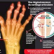 Arthrose: alternatives nouvelles à la chirurgie