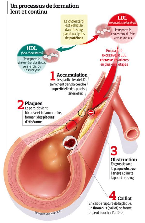 cholesterol hdl bas que faire