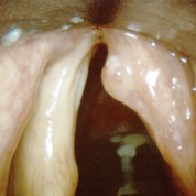 Un virus responsable du cancer de la gorge ?