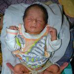 Le petit garçon a été opéré 10 jours après sa naissance.