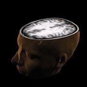 Avancée majeure de la génétique du cerveau