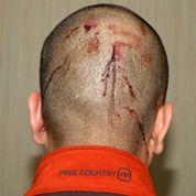 George Zimmerman abien eu le nez cassé