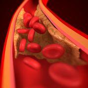 Cholestérol: les statines débouchent les artères