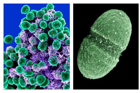 Guérir grâce aux microbes de notre organisme