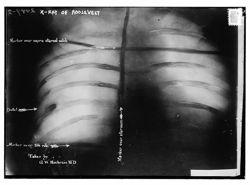 La poitrine de Théodore Roosevelt passée aux rayons X. En bas à gauche, la balle fichée dans le corps de l'ancien président.