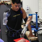 Un bras artificiel qui répond aux signaux du cerveau