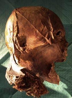L'analyse ADN d'Henri IV a été réalisée à partir d'un échantillon prélevé au fond de la gorge de sa tête momifiée.  Crédit: Forensic Science International.