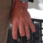 Sir Ranulph Fiennes s'est amputé lui-même le bout des doigts pendant une expédition en Arctique en 2000.