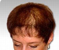 La calvitie complète est très rare chez les femmes qui souffrent plutôt d'alopécie diffuse.