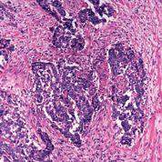Comment dépister les cancers de la bouche?
